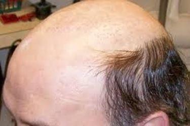 Fenomeno di alopecia