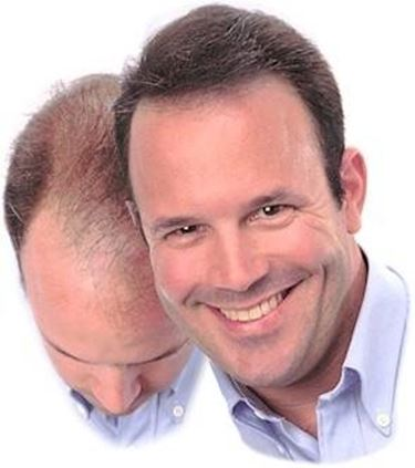 capelli calvizie